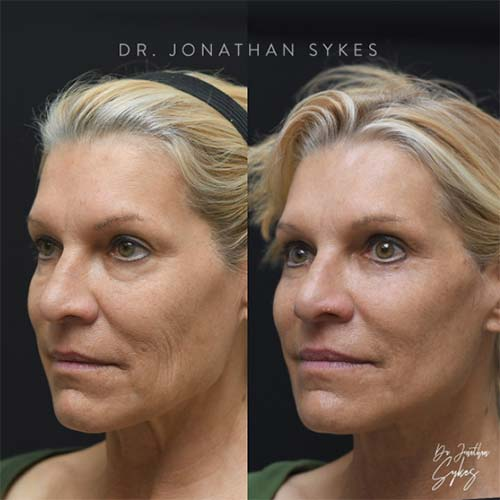 Facelift rhinoplasty plastic surgeon near me in Beverly Hills