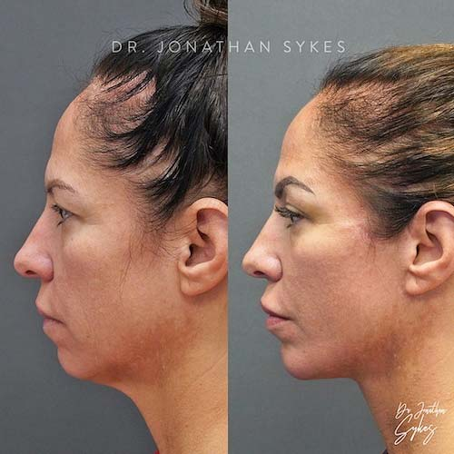 Face lift neck lift plastic surgeon near me in Beverly Hills California